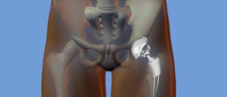 Лечение Боли В Суставах На Видео