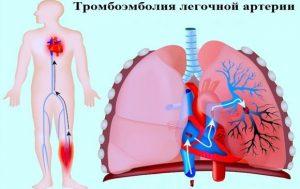 tromboemboliya-legochnoj-arterii-e1508788023956-300x189