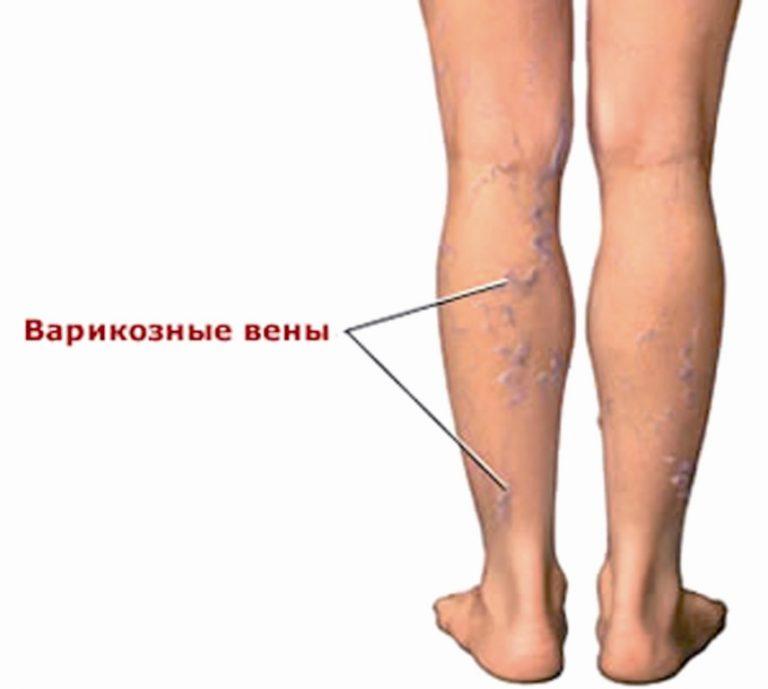 Варикоз верхних конечностей лечение