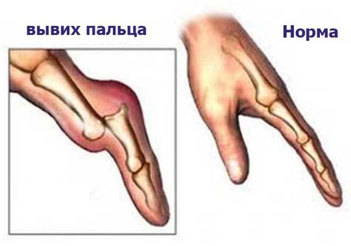 Лечение суставов пальцев рук выбит дисплазия тазобедренного сустава в год