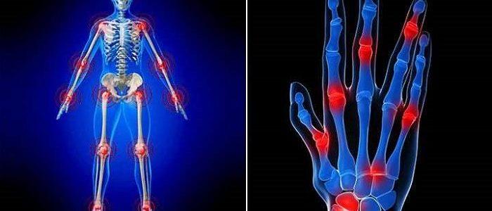 Болезнь суставов артроз