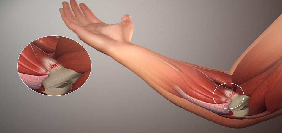 Артроза локтевого сустава лечение в домашних условиях