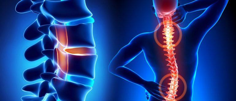 Когда болят суставы и позвоночник