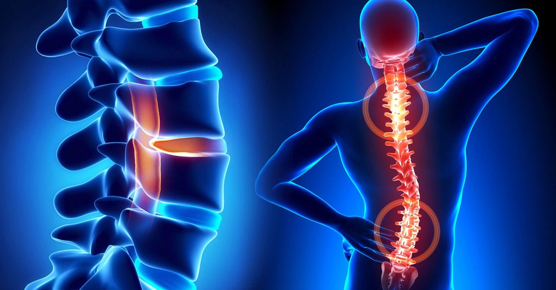 Очищение суставов боли в позвоночнике