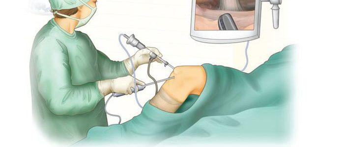 Дебридмент правого коленного сустава что это такое