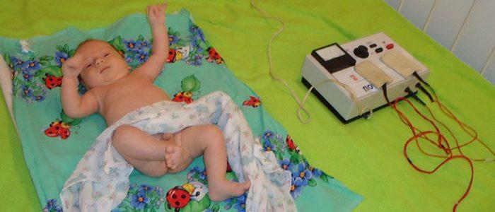 Лечение дисплазии тазобедренных суставов электрофорезом установка коленного сустава видео