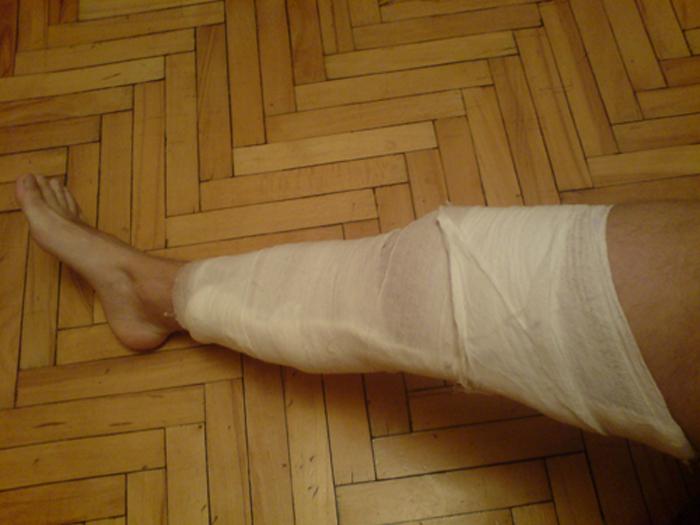 Лангетка коленный сустав болезнь суставов ног и рук лечение народными средствами