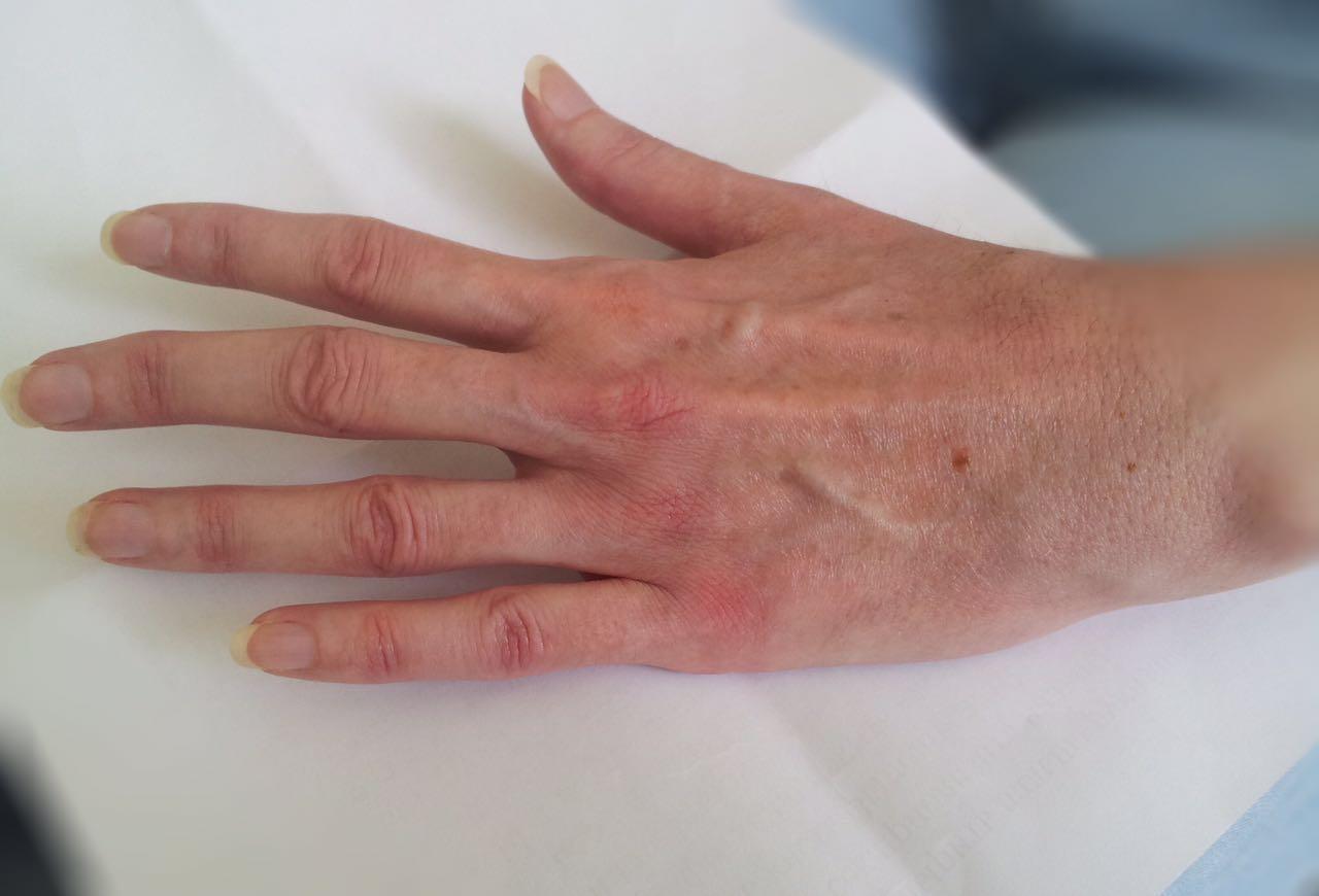 Полиартроз кистей рук лечение народными средствами