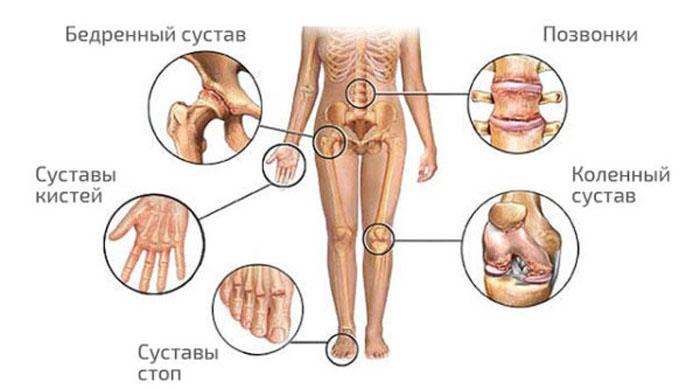 Суставы человека картинка коленный сустав-строение заболевание повреждение