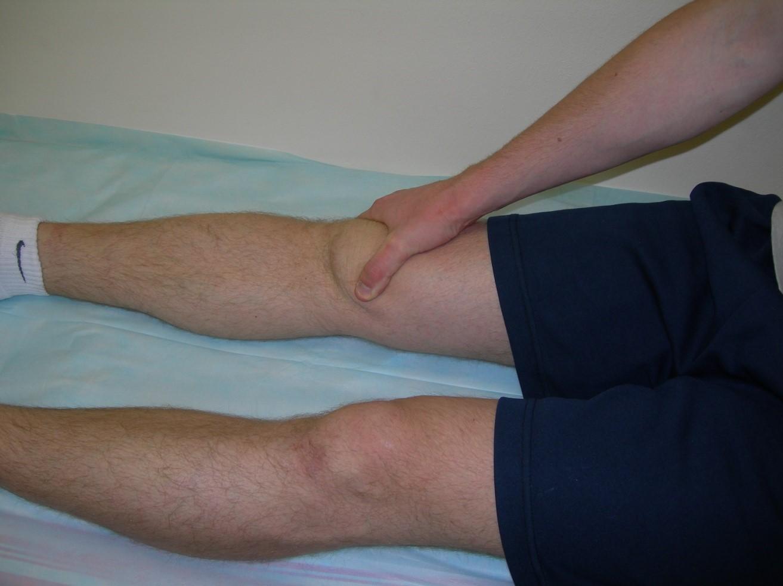 Артрофиброз коленного сустава лечение мрт коленного сустава киев цена на красном хуторе
