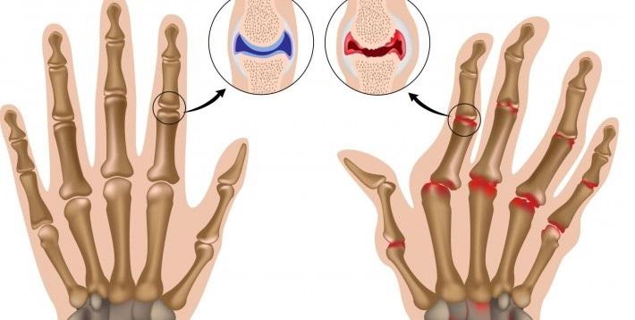 Гематома межфалангового сустава болезни лап суставов у собак