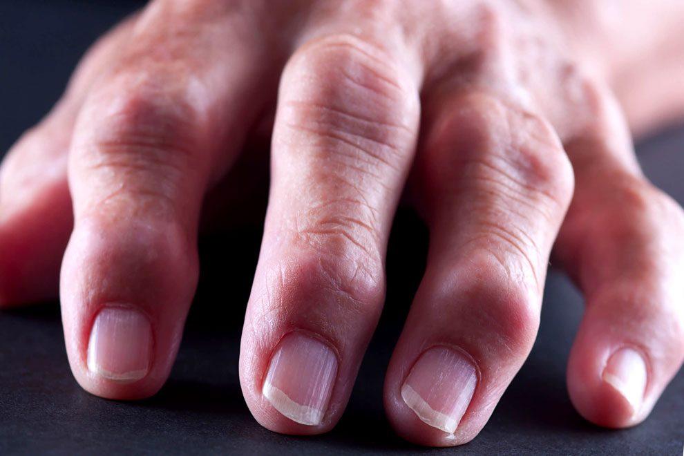 Болят Суставы На Пальцах Рук Лечение Препараты