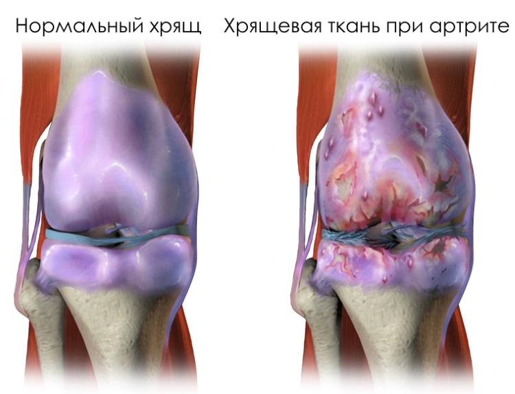 Горят суставы какие документы для получения квоты на замену сустава в москве