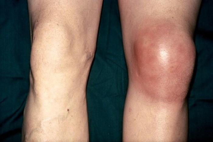 Эпикондилит коленного сустава симптомы лечение аномалия тропизма суставных отростков коленного сустава