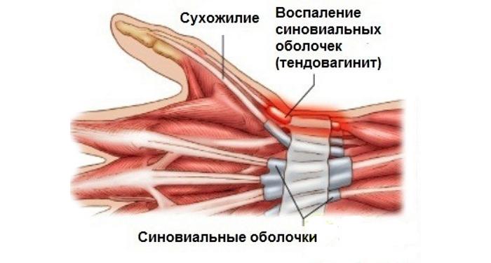 Симптомы и различные методы лечения артроза лучезапястного сустава