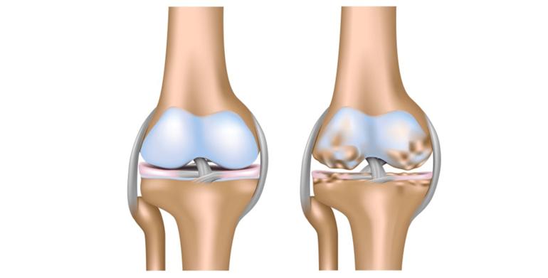 Водянка сустава боль спине суставах мышцах